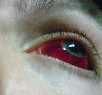 Ответы@Mail.Ru: Как получить кровоизлияние в склеру? (белок глаза)