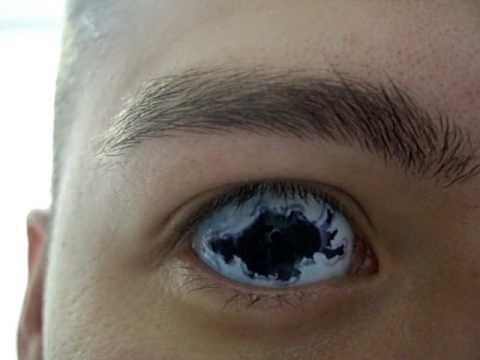 белые глаза видео