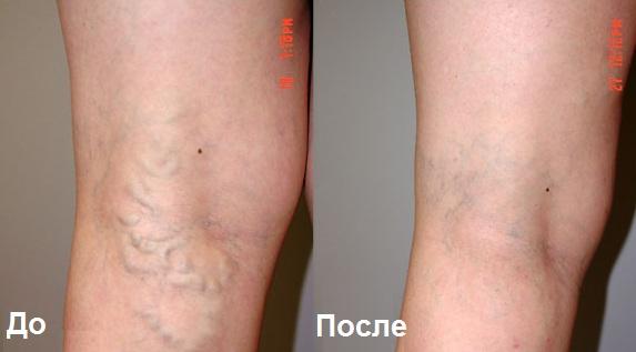 Лечение варикоза на ранних стадиях