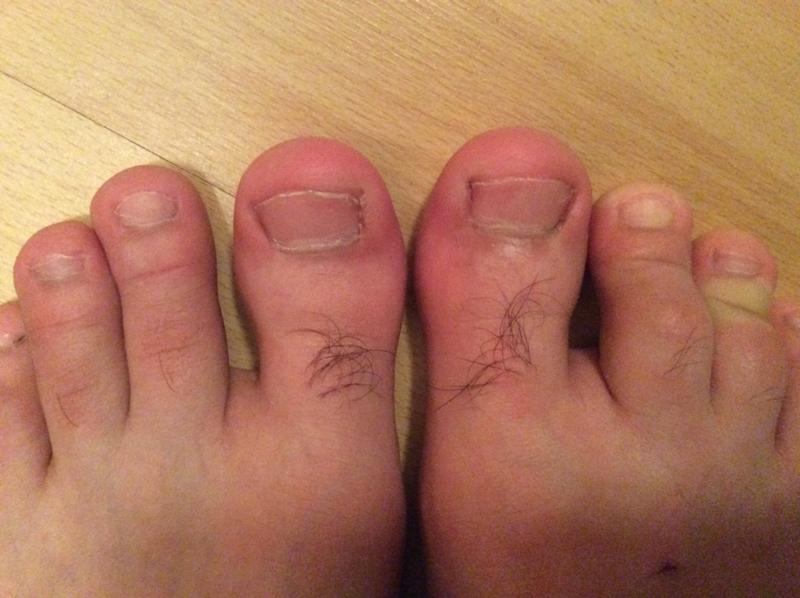 Вросший ноготь на ноге опух