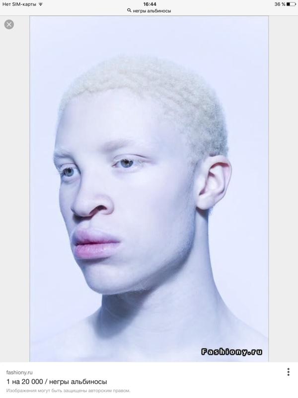 albino black model - 562×700