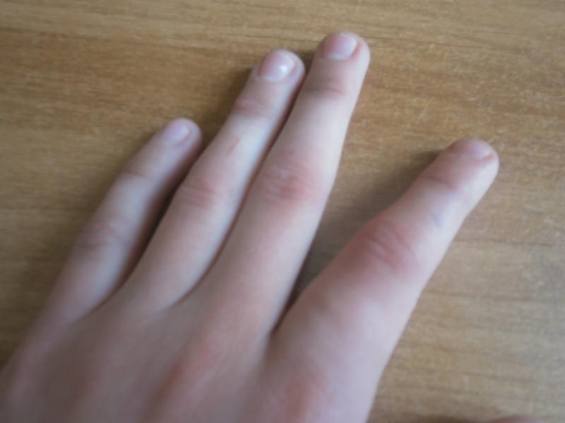 картинка опухший палец разделен