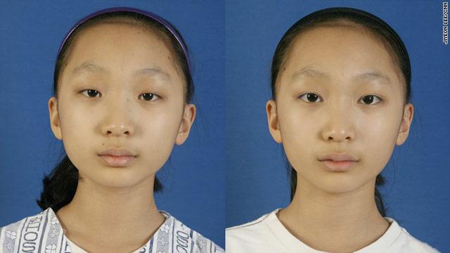 Увеличение глаз операция до и после фото