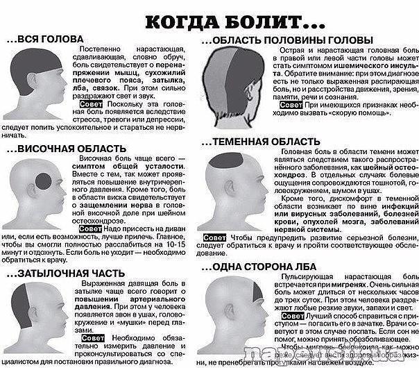 Боли в области теменной части головы