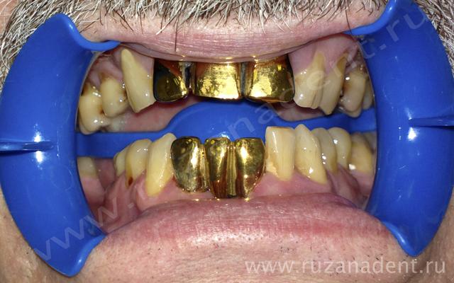 Коронка на зуб цена самара