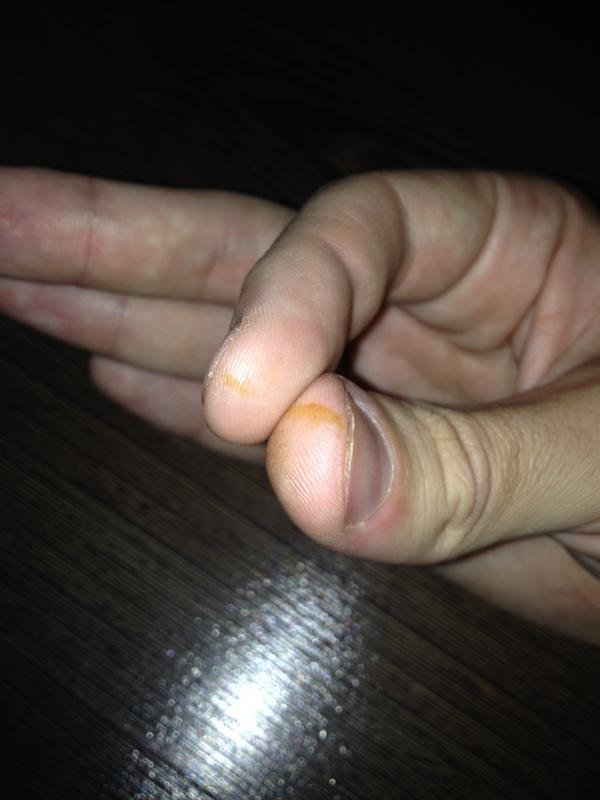 Пятно на пальце руки
