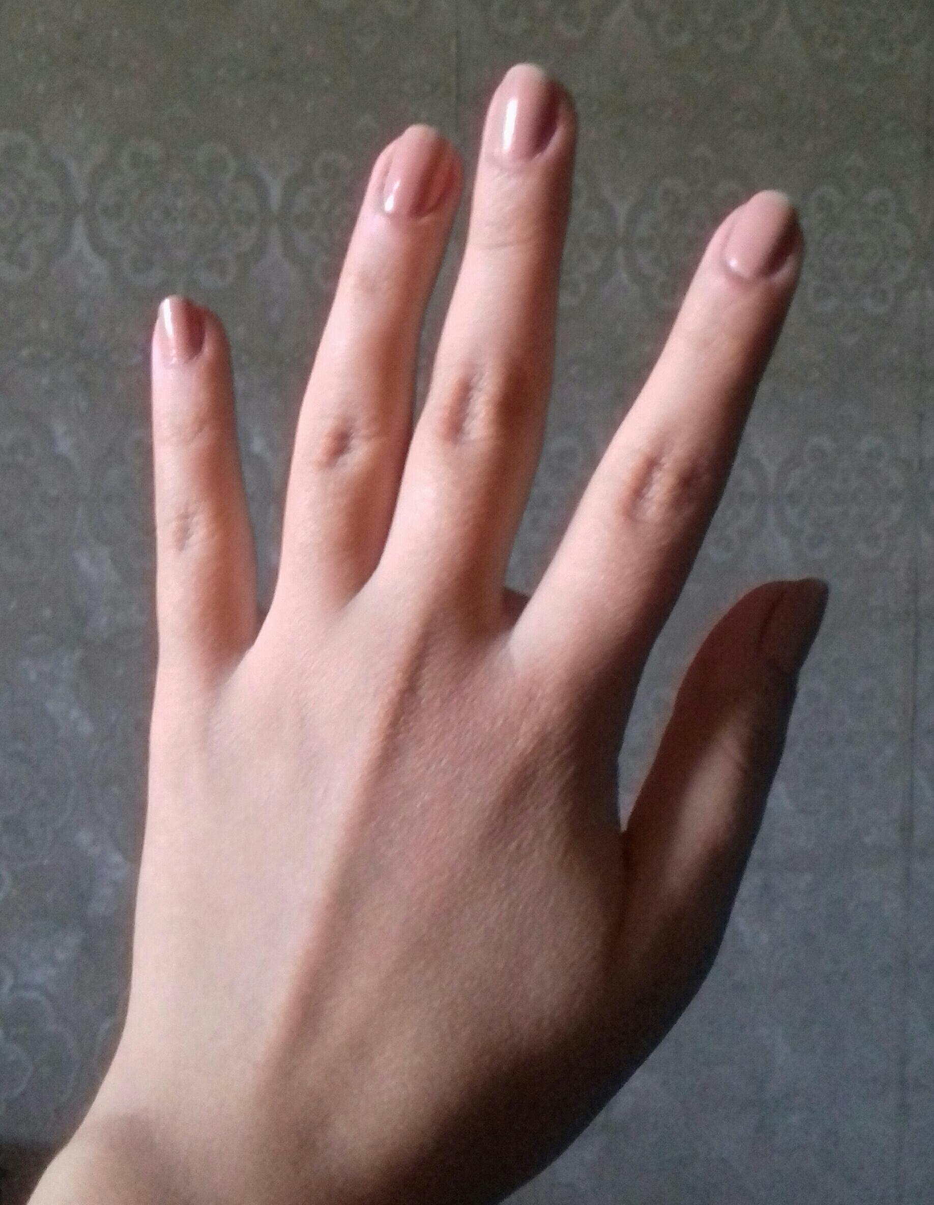 Похудели пальцы на руках спадает кольцо