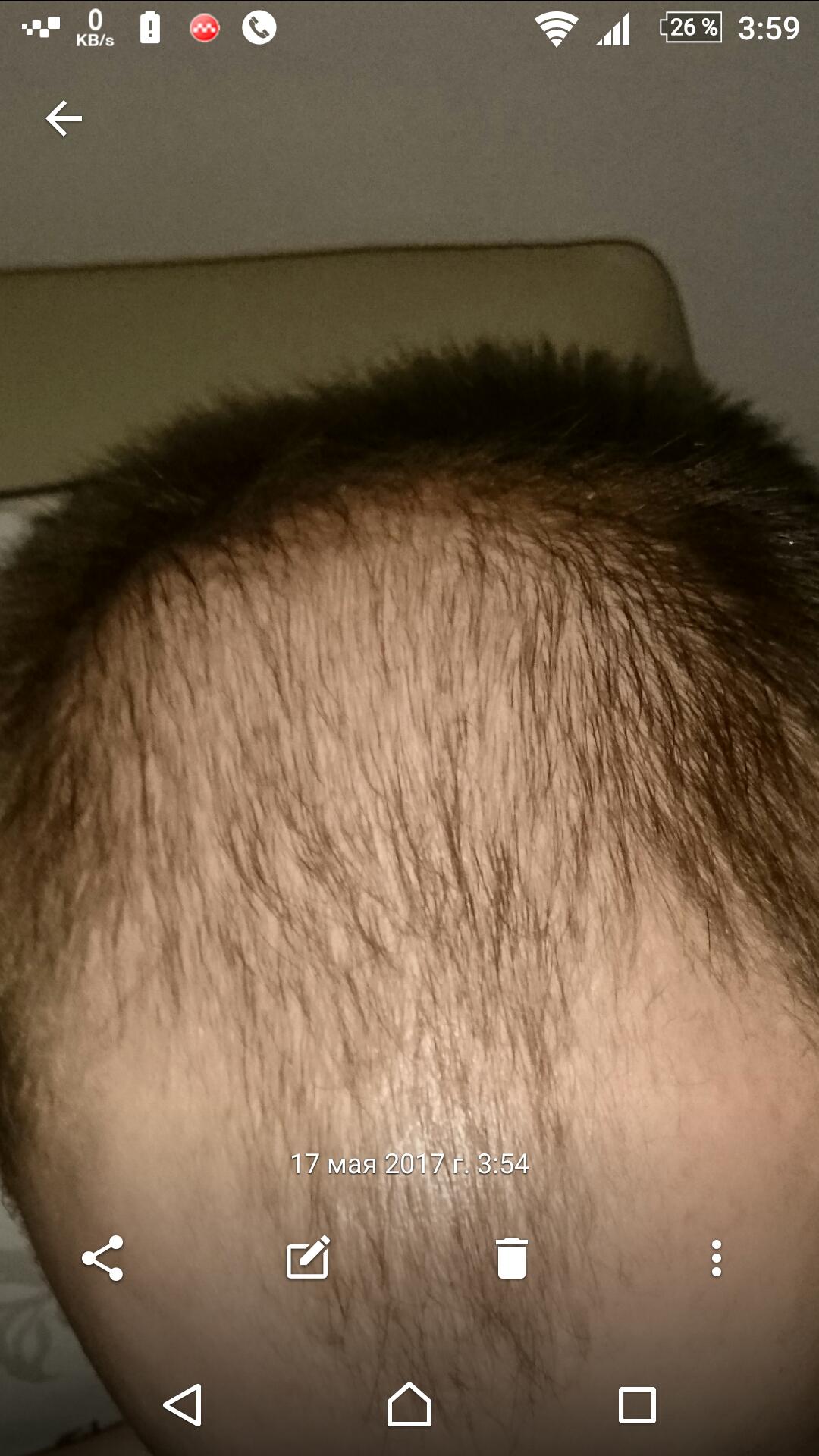 Что почему в попе растут волосы