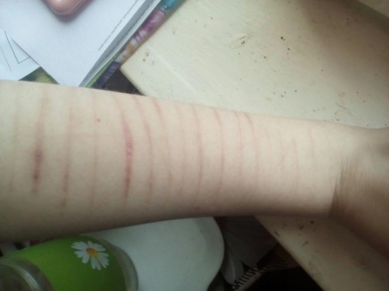 Как быстро заживают порезы на руках