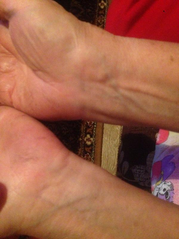 Припухлость на запястье руки без боли