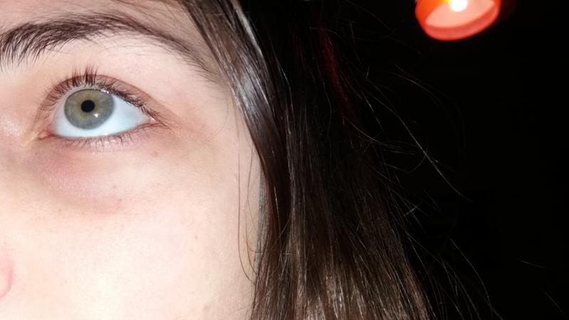 Утомляемость головокружение синяки под глазами