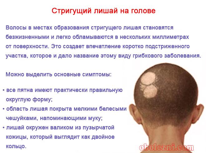 Стригущий лишай на голове начальная стадия