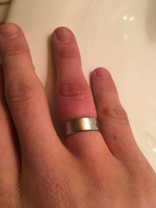 Похудели пальцы обручальное