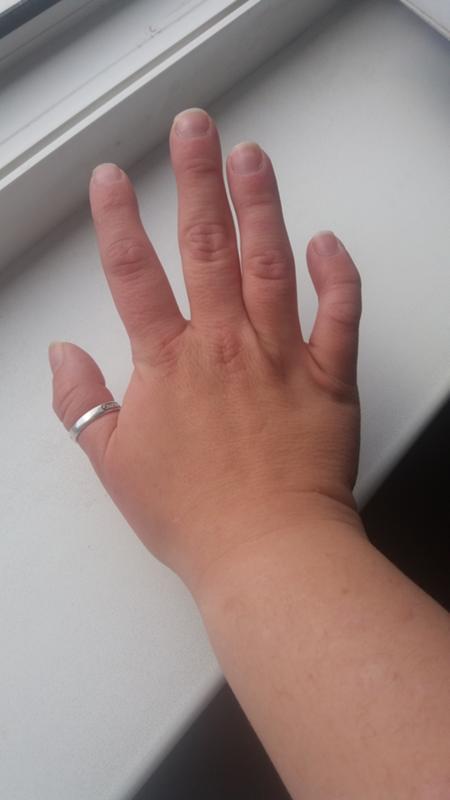 крючковатые пальцы фото сети магазинов кубанская
