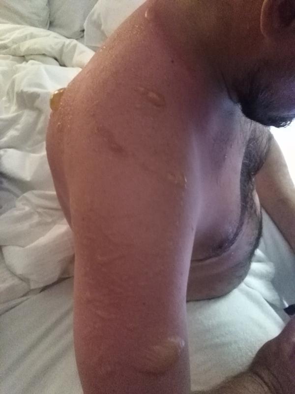 Ушибы спины ожоги от ковра при трении после секса видео — 15