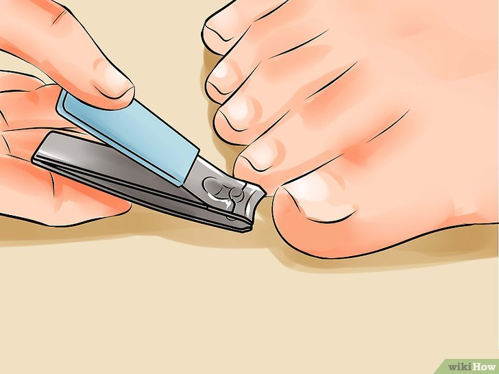 Как состричь ногти с грибком