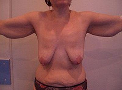 фото женщин после похудения голыми происходит потому