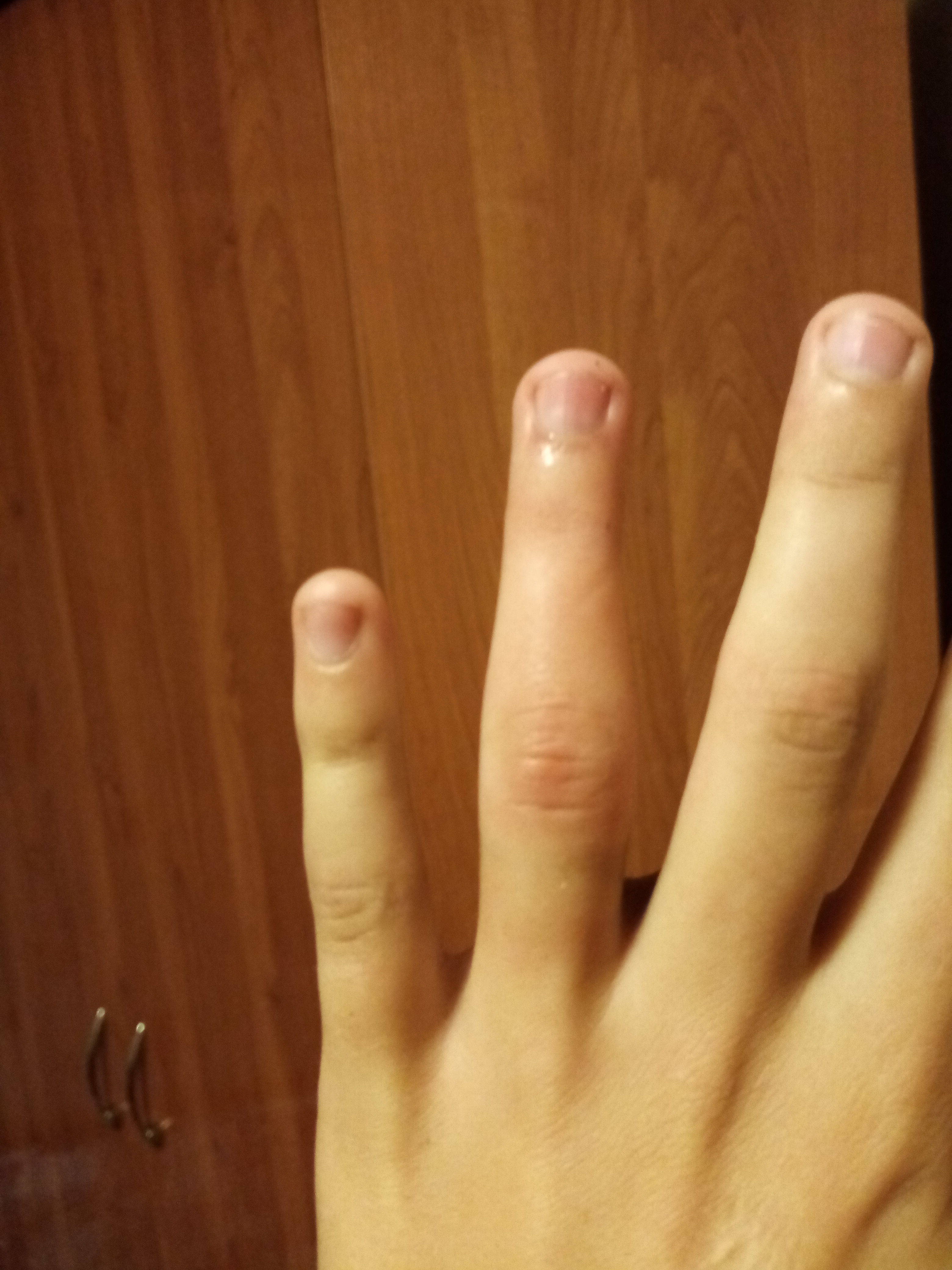 картинка опухший палец главном плане