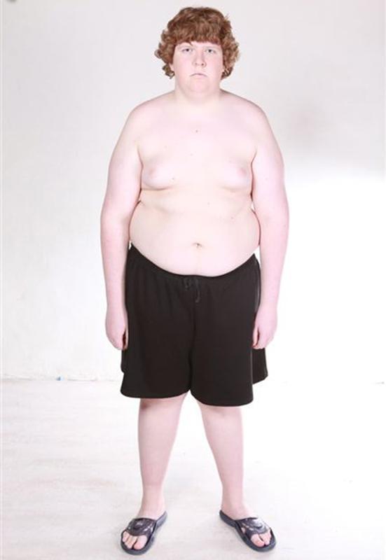 Похудение Подростка 13 Лет.