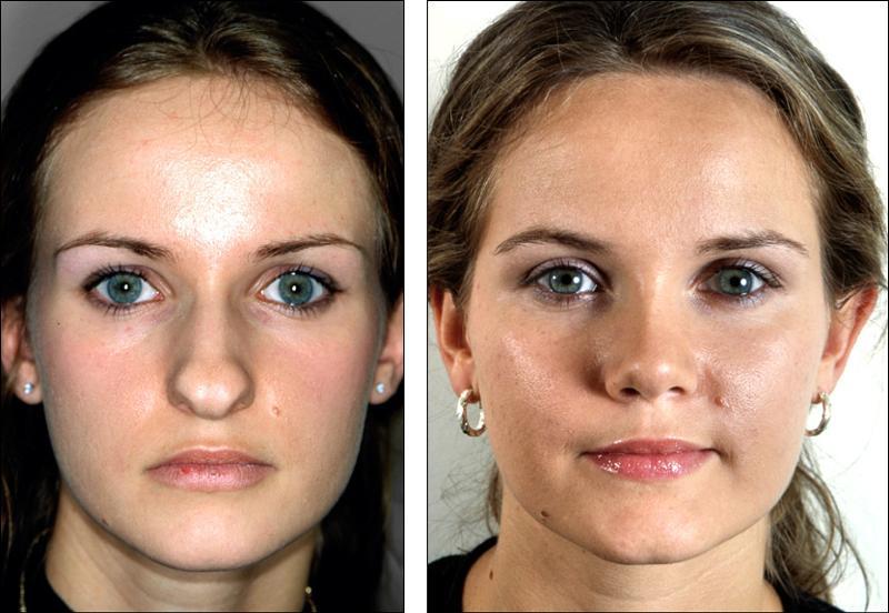 Ринопластика носа дешево