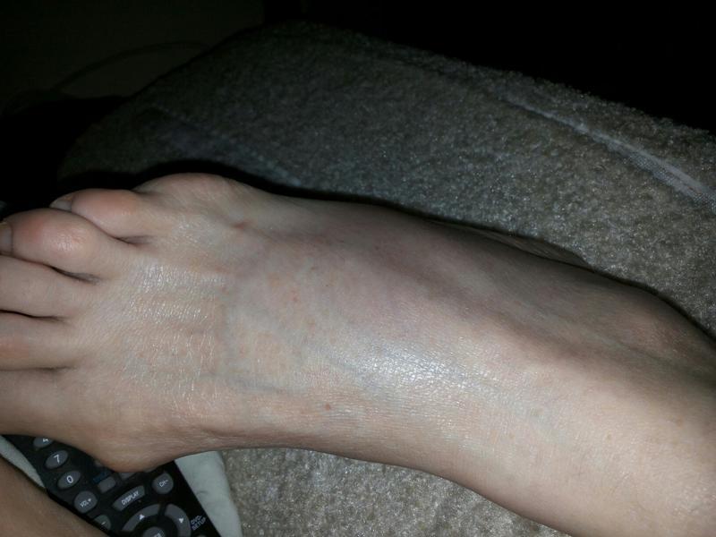 Ответы Mail.Ru: Что с ногой У моей мамы опухла нога (стопа) и ...