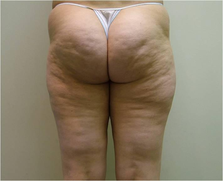 Фото жирных ног — pic 14