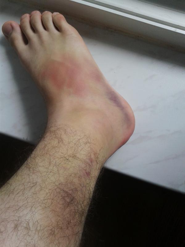 Нога вывих картинка