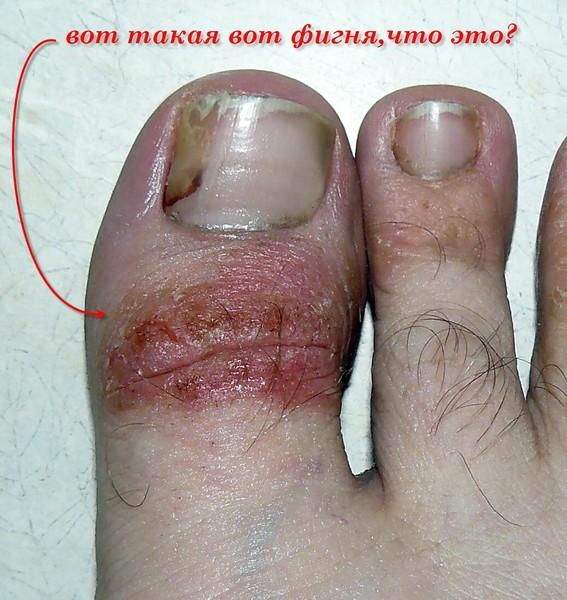 Народные средства от грибка на ногтях ног быстро