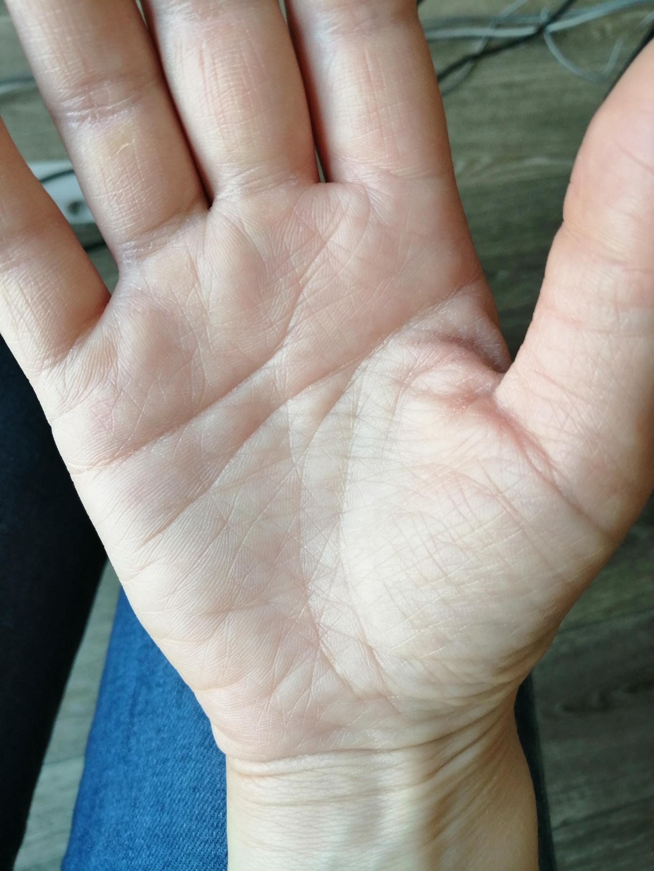 виды линий жизни на руке фото вот