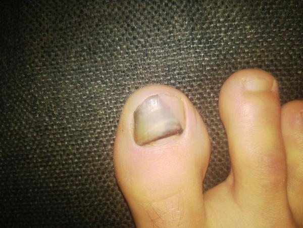 Ногти после удара
