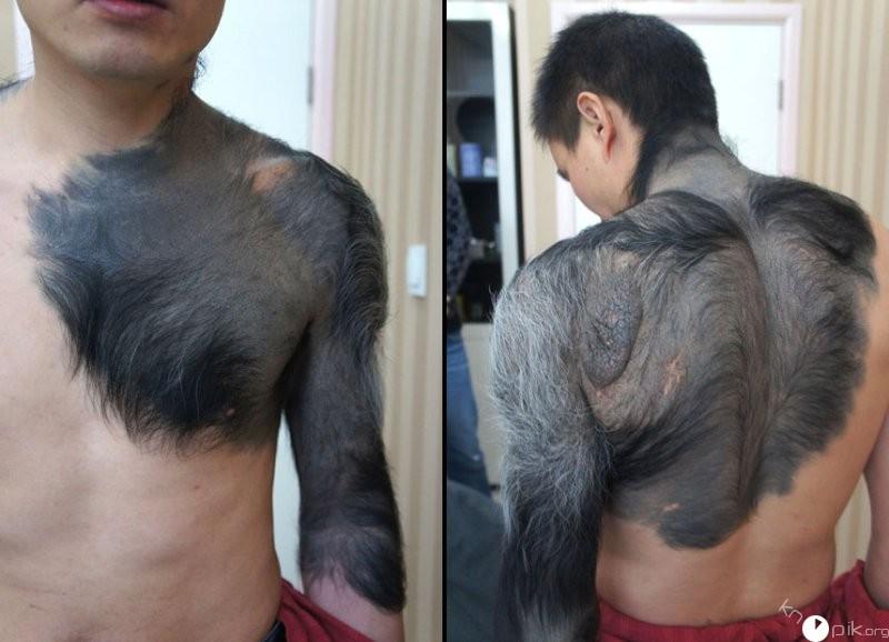 тестостерон и волосы