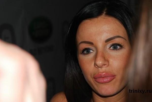 Пластические операции Анджелины Джоли: фото до и после, результаты операций