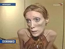 10 самых чудовищных случаев анорексии