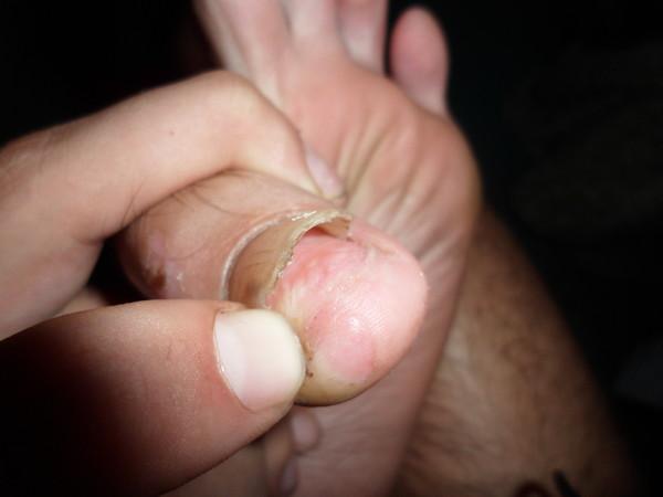 что делать если нокоть почти оторвался