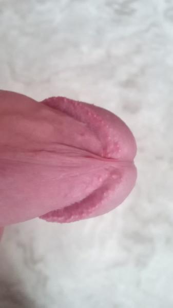 Перламутровое кольцо головки пениса