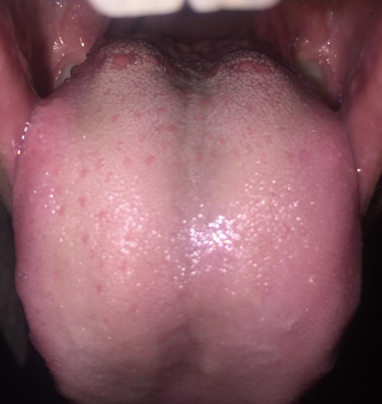 На языке у горла появился прыщ