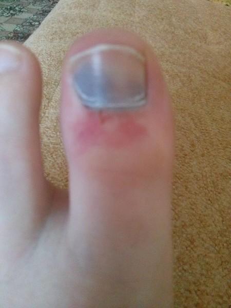 Ответы@Mail.Ru: Сильный ушиб пальца на ноге