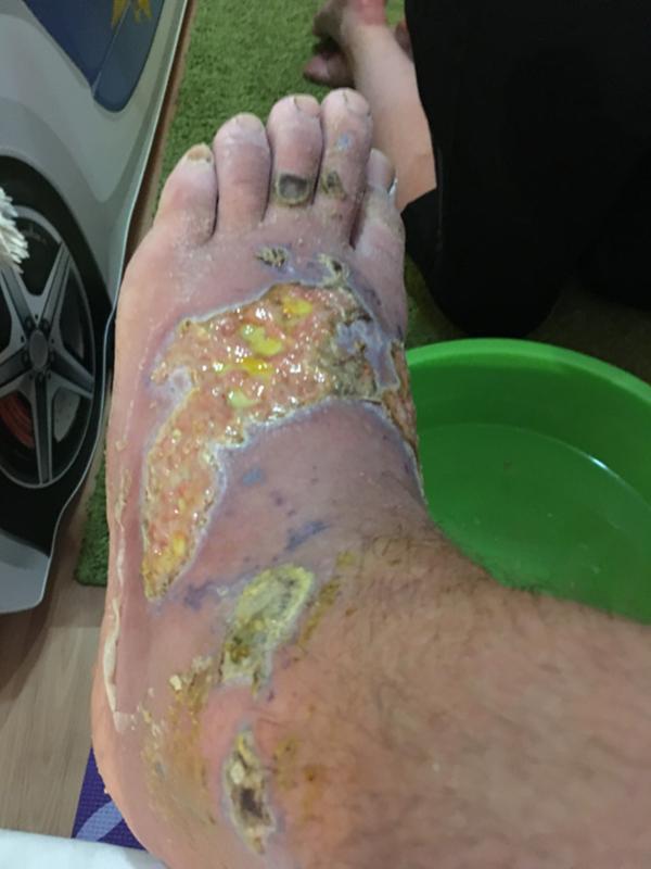 Степень ожога картинка на ноге