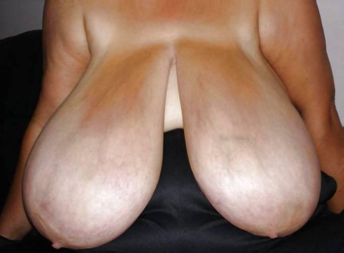 Стремная грудь фото — img 2