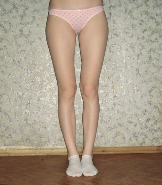 фото кривых женских ног