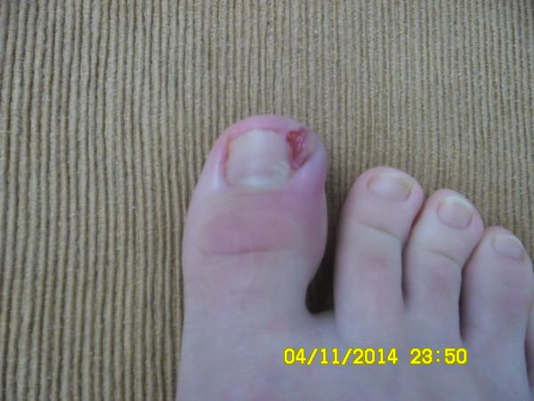 Воспалился вросший ноготь на большом пальце ноги