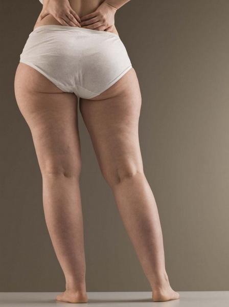 так смогла толстые ноги девушек фото загорелые тела