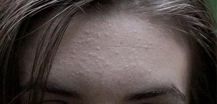 сыпь на лбу лице шее причины телочка улеглась