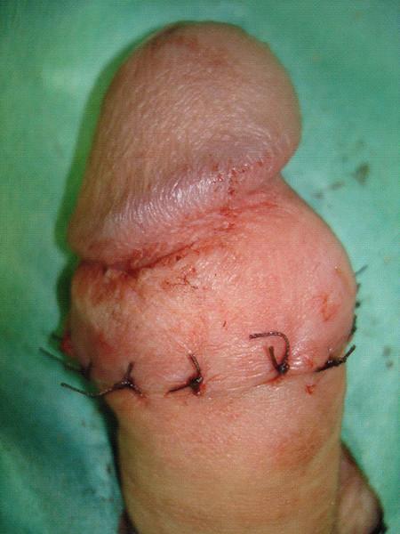 отек полового члена после обрезания
