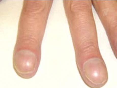Ногти на руках широкие