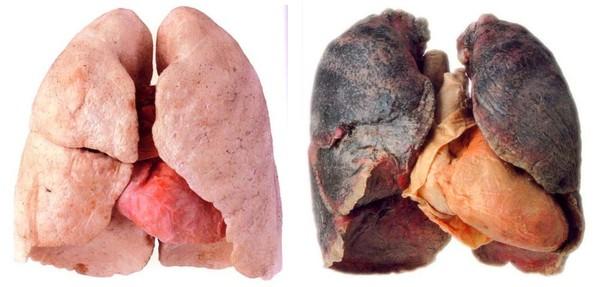 Марихуана при сахарном диабете сколько лет дают за выращивание марихуаны