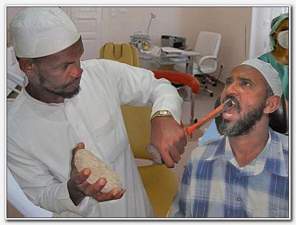 Удаление нерва зуба мышьяком