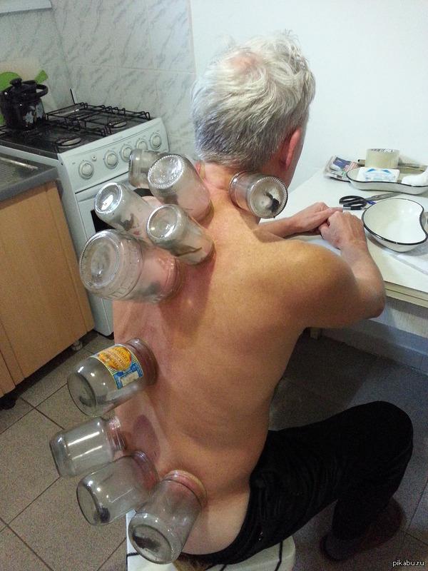 Лечение банками остеохондроза куда ставить