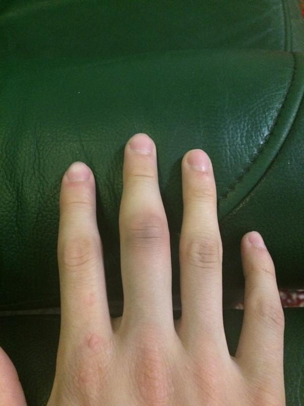 способны картинка опухший палец специализируется лечении заболеваний
