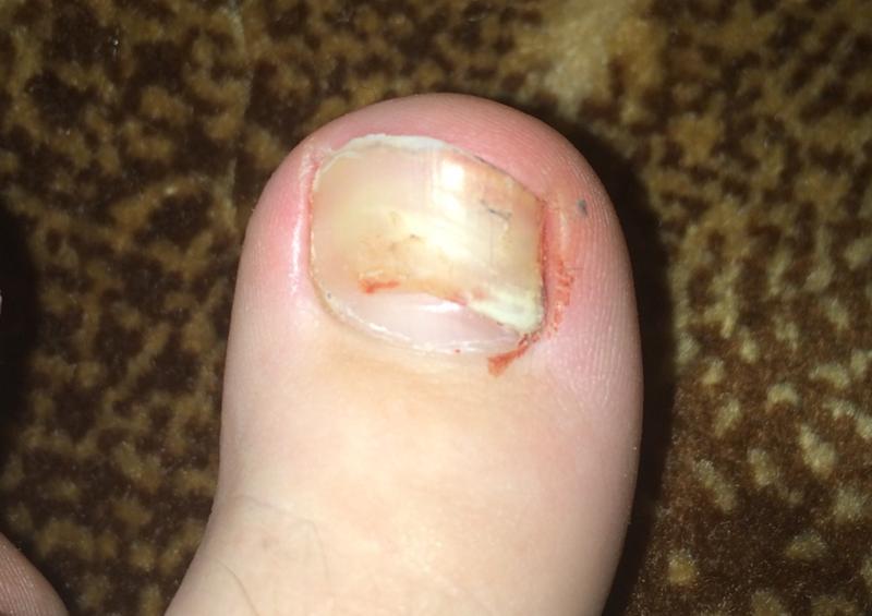 Отвалился ноготь на большом пальце ноги грибок